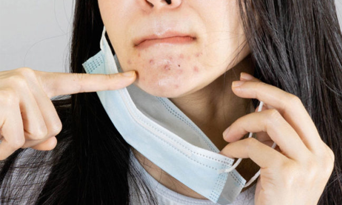 Maskne: What It Is, How To Prevent It And How To Treat It