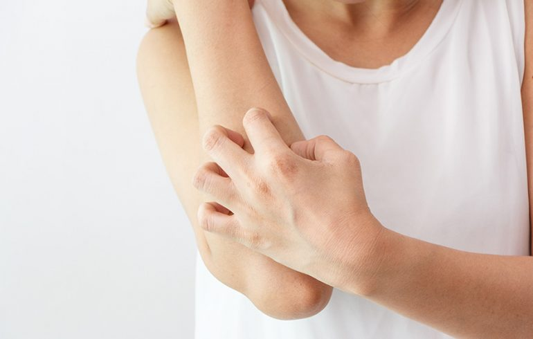7 Natural Remedies for Eczema!